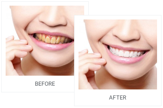 tooth whitening2